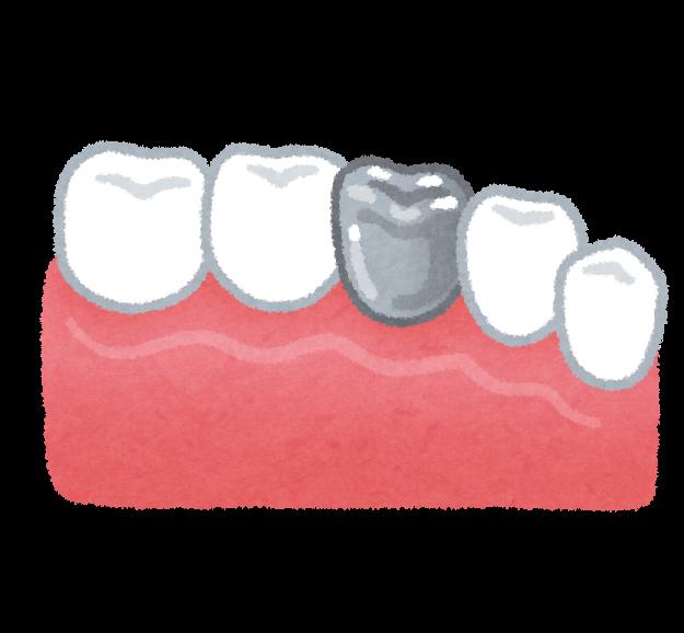 銀歯の被せものが取れた時/外れた時に掛かる歯医者の費用&期間まとめ